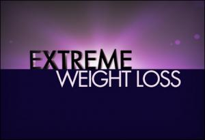 'Extreme Weight Loss' returns to CU Anschutz Health and Wellness Center