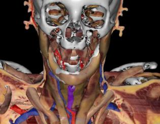 Virtual human — a living cadaver — pushes boundaries of anatomical science