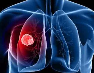 Lung cancer is the number one cause of cancer deaths globally