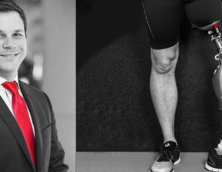 Limb restoration gives amputees bold way to move forward